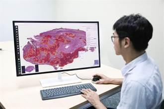人工智慧辨識肺部腫瘤 北醫大論文登全球知名期刊