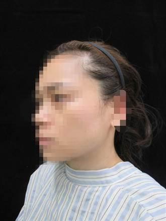 美女三分之一左耳遭咬斷 整形重建找回自信