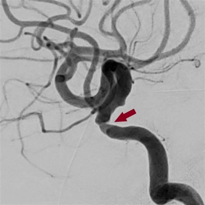 陳先生到院檢查,發現腦部血管已經嚴重狹窄,險造成缺血性腦中風。(圖/恩主公醫院提供)