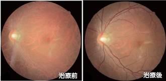 三酸高油脂超標60倍 年輕人患罕病油脂塞滿眼下血管