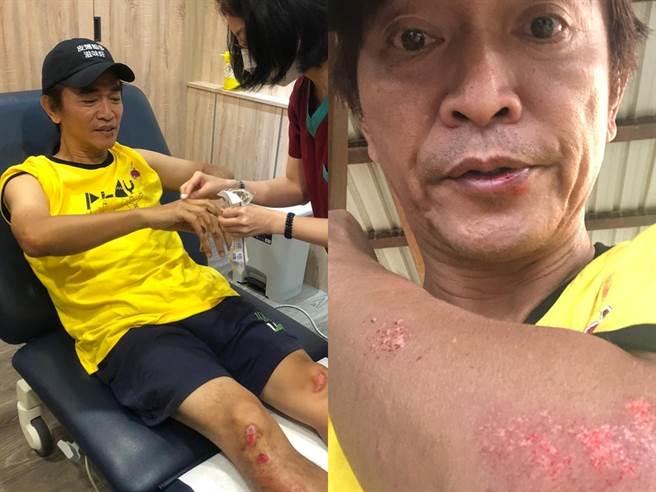 吴宗宪去年出外景不幸摔车。(图/FB@吴宗宪)