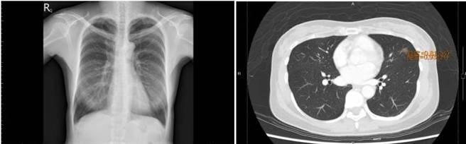 50歲女患者胸部X光檢查無明顯異常(圖左),但低劑量電腦斷層檢查(圖右)卻發現左肺毛玻璃狀結節,追蹤後為早期肺癌。(圖/恩主公醫院提供)
