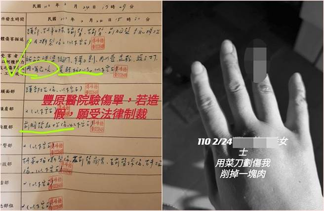 前空姐控婆婆傷害,貼出驗傷單及手指鮮血照。(截自《爆料公社》)