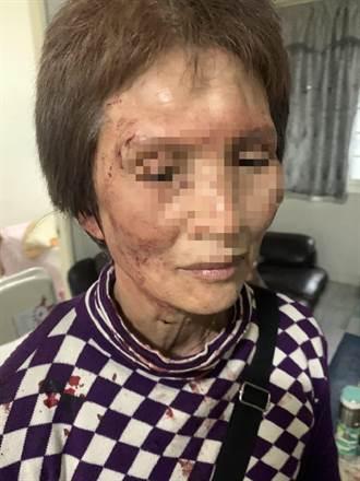 女房东要解约 遭越籍女房客殴伤脸部缝三针怒提告