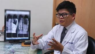 2節胸椎垮成1節 68歲癱婦翻身椎心痛