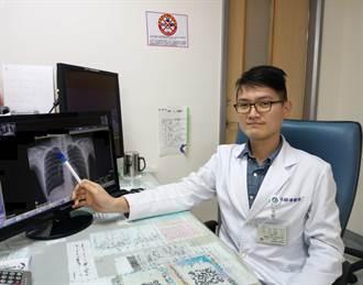 20岁男发生5次气胸 微创手术降低復发率