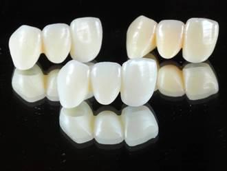 媲美真牙!陽明交大假牙3D列印新材質 獲准在台量產上市