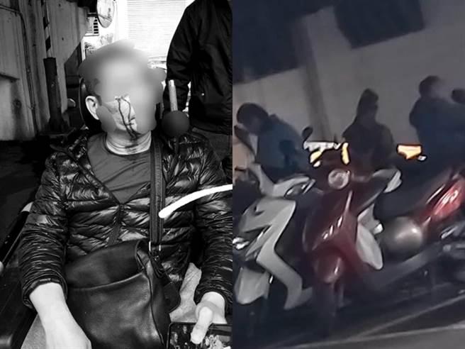 網友的父親本月6日上前勸說橋下醉漢小聲點,竟遭對方一夥人圍毆,他因坐在輪椅上行動受阻,被打到眼鏡破裂,鏡片甚至插進眼睛。(圖/翻攝自臉書爆料公社)