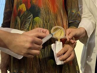 半百退休女老師患急性尿失禁 中醫大微創手術助終結尿布人生