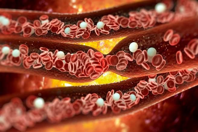 AZ新冠疫苗身陷血栓副作用致死疑云,英国专家指出,血栓症状可能是新冠病毒所致,患者在施打AZ疫苗前,或许就已经感染新冠肺炎。(示意图/shutterstock)
