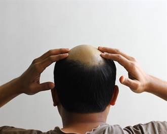 走私客剃成地中海禿頭藏黃金 因髮型太怪秒被逮