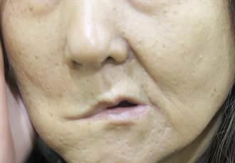 眼歪嘴斜當顏面神經麻痺治療 2年未痊癒竟罹腮腺癌