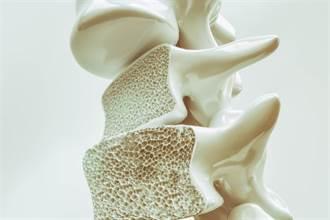讓人失能的無聲殺手進逼 全球每3秒就1人因骨質疏鬆症骨折