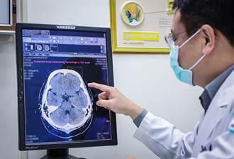 獨步全桃 怡仁引入智慧AI機器 30秒內判讀顱內出血