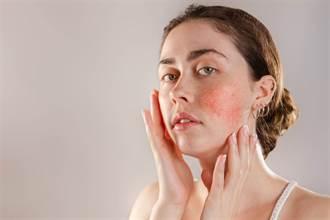 換季皮膚癢又紅、藥物也沒用時 試試「調控水溫」