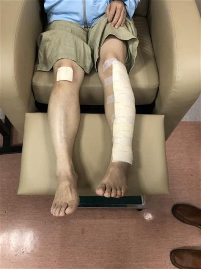 先進的傷口敷料,有助於傷口癒合並且減少疼痛。(竹山秀傳醫院提供/廖志晃南投傳真)