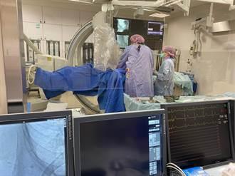 洗腎出問題 婦人接受血管整形術打通動靜脈廔管