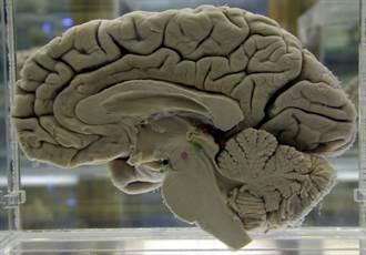 認知救星 每天50克就能降低失智風險達19%的美食