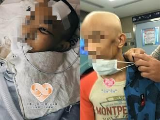 淡水癌末少年3度擴散左臉恐塌陷 拒手術喊:不想變半臉怪人