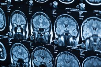加拿大驚現神秘腦部疾病 患者出現幻覺、抽搐已釀5死