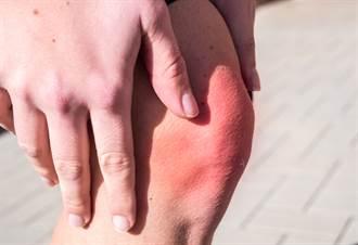 膝蓋卡又痛就是退化性關節炎?醫:先別急著開刀 試試這方法