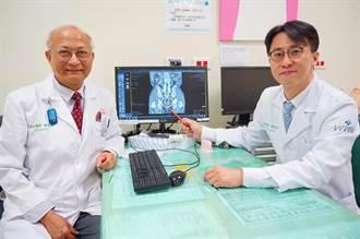 大腸直腸癌手術保留肛門 臨床成功案例多