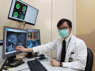 不抽菸輕熟女突然性格大變 竟因肺癌致腦轉移