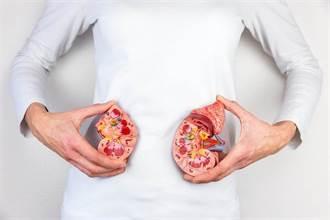 疼痛出現時 結石恐已塞滿腎臟 對付腎結石有新招