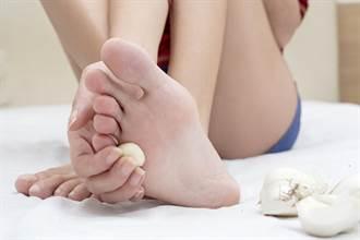 腳長硬繭是病毒疣還是雞眼? 1分鐘自我檢測