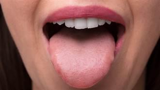 女子患舌癌移植小腿肌膚  痊癒後「嘴裡長毛」超崩潰