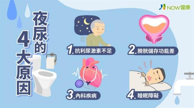 台灣40歲以上成人的夜尿盛行率高達38.1%,盛行率隨著年齡增長而增加,但民眾常認為這只是老年退化表現,就醫率偏低。(圖/NOW健康提供)
