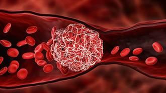 AZ疫苗爆罕见血栓找到可能原因了 神秘抗体惊现诡异行径