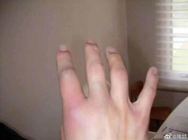 陶喆年輕時在加州騎重機發生車禍,右手食指骨折。(圖/ 摘自陶喆微博)