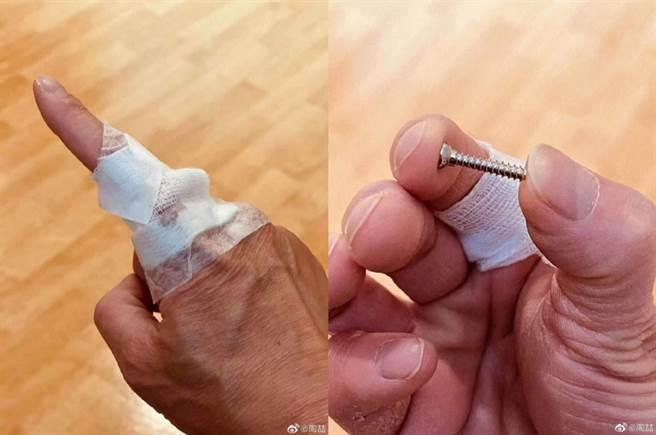 陶喆今日取出放在手指裡15年的鋼釘(螺絲)。(圖/ 摘自陶喆微博)