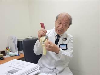 保留健康骨本 客製化膝關節手術成顯學