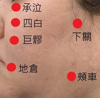 婦人顏面神經失調 求助針灸治療終獲痊癒
