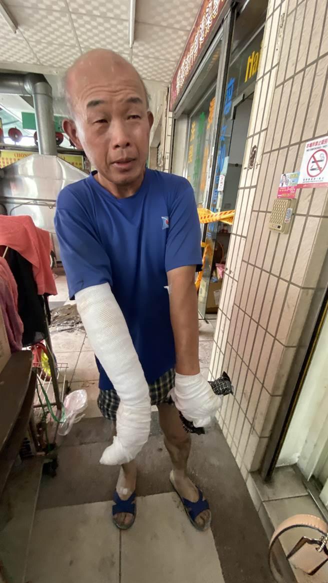 中市中華路民宅深夜失火3童喪命,58歲張姓住戶手臂燙傷送醫,他返回火場,談起火災發生當時餘悸猶存。(陳淑芬攝)