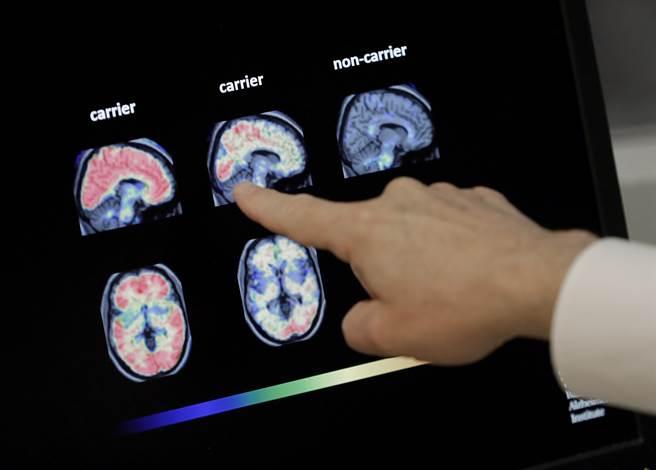 研究發現,中年時每天沒睡滿6小時,老來容易失智症纏身。圖為失智者腦部掃描。(圖/美聯社)
