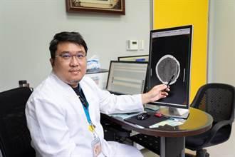 擠痘流膿不止 27歲護理師差點罹腦膜炎