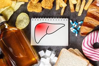 健檢看出脂肪肝怎麼辦?醫曝「最好的特效藥」