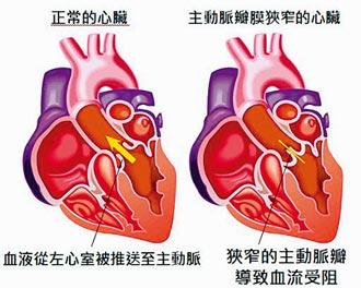 主動脈瓣狹窄致命風險高