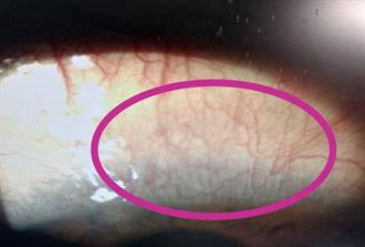 外配患紅眼症自買藥水點 竟罹罕病惡化成癌亡
