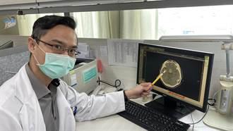 中年婦視力突模糊急性頭痛 竟是腦下垂體腫瘤出血