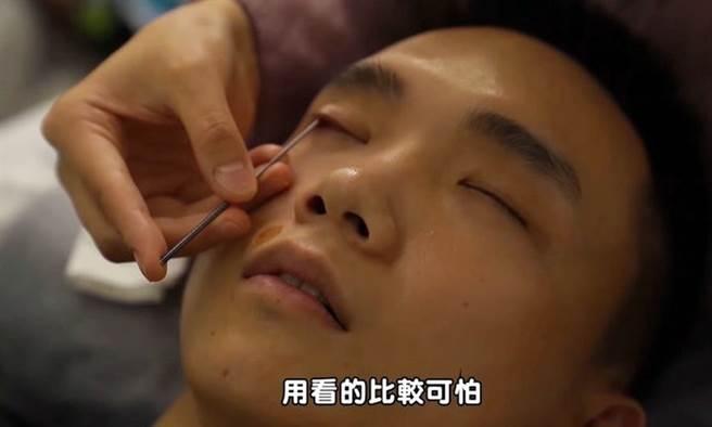 網紅親身體驗采耳、耳燭、洗眼睛…,這些坊間護理真的有效嗎?(圖/擷取自黃氏兄弟Youtube頻道 康健雜誌提供)