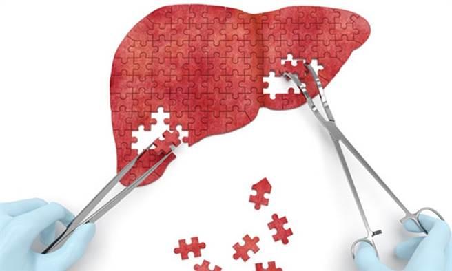 醫師指出,脂肪肝有2種,如果愛吃甜點這種高油高糖的食物,即使不喝酒也傷「肝」。(示意圖/Shutterstock)
