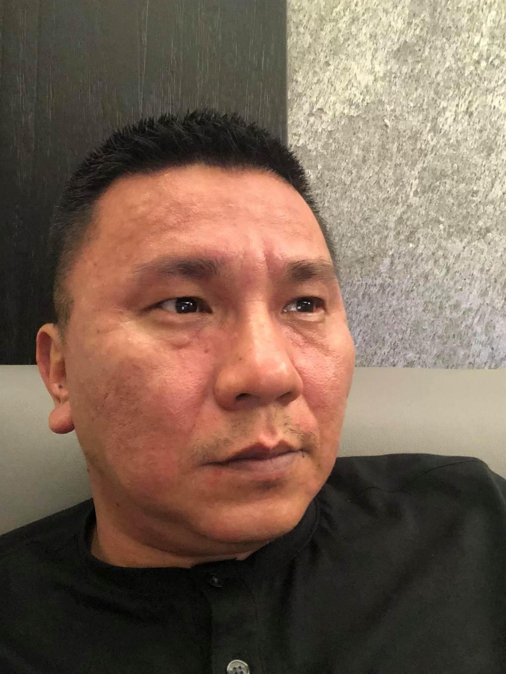 彰化縣議員陳一惇日前在臉書PO出自己臉又紅又腫的照片,表示蝦子下肚後不到10分鐘就變這樣,又快又急,時不時這樣讓他相當困擾。(陳一惇提供/吳建輝彰化傳真)