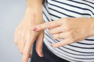 傷口不留疤痕 美容膠帶貼法 大多數人貼錯了