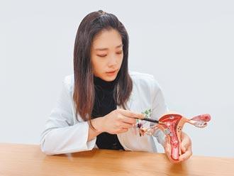 發燒猛咳竟掉出子宮肌瘤