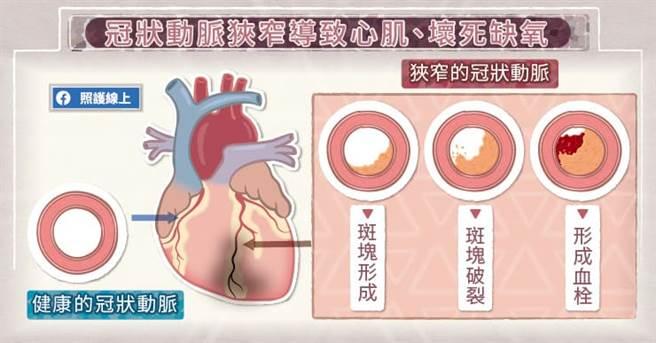 當冠狀動脈有明顯狹窄的狀況,患者只要活動量增加,心肌就會缺氧,導致胸悶不適。(圖/照護線上提供)
