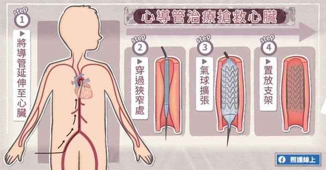 血管介入治療搶救心臟。(圖/照護線上提供)